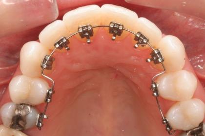 矯正装置を歯の裏側に付ける矯正治療